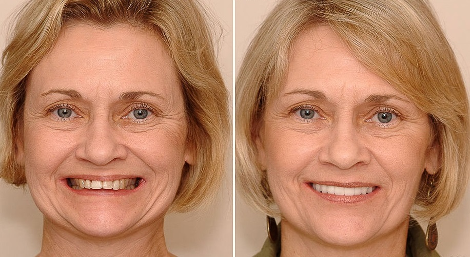 #dental_face_lift_москва